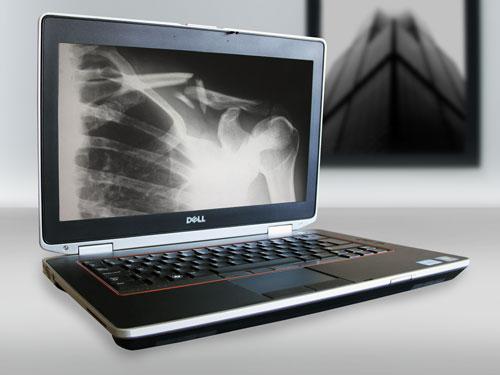 Laptop w przychodni